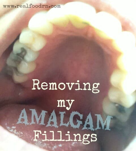 Removing my Amalgam Fillings | Real Food RN