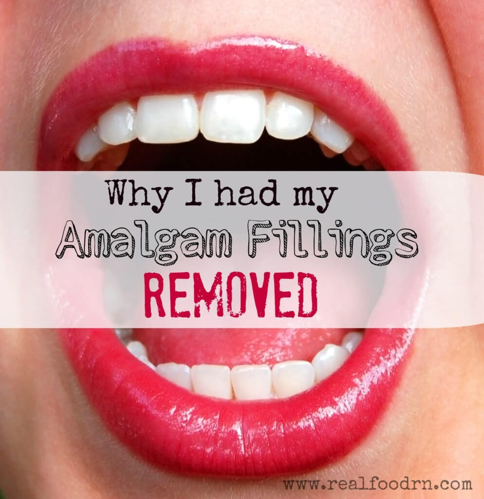 Why i had my amalgam fillings removed solutioingenieria