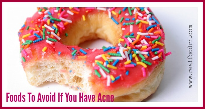 Foods to Avoid If You Have Acne | Real Food RN