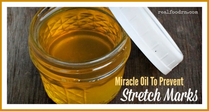 Miracle Oil To Prevent Stretch Marks | Real Food RN